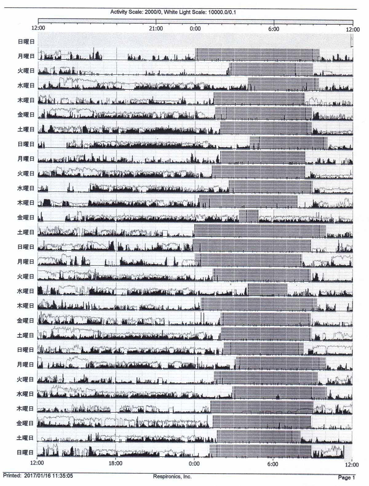 睡眠外来で測定した睡眠データ