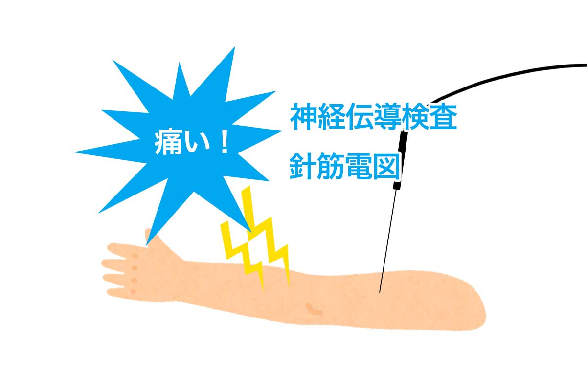 神経伝導検査と針筋電図
